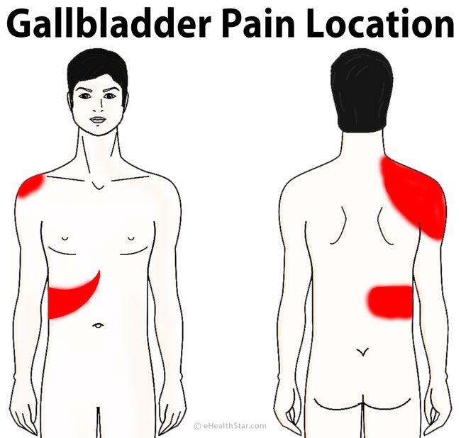 Foods Help Gallbladder Pain