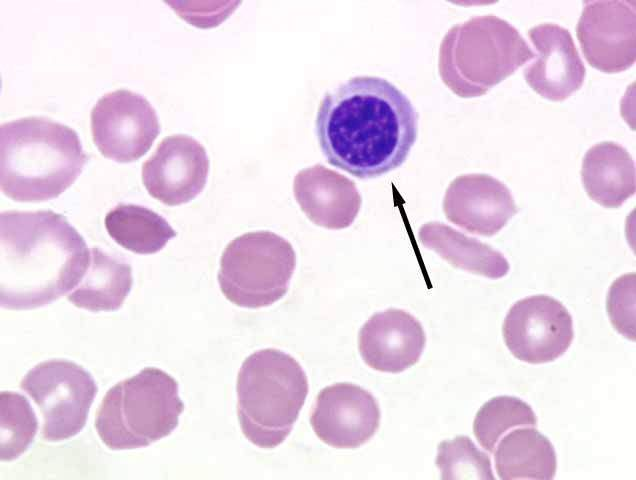 White Blood Cell Inclusions Cats