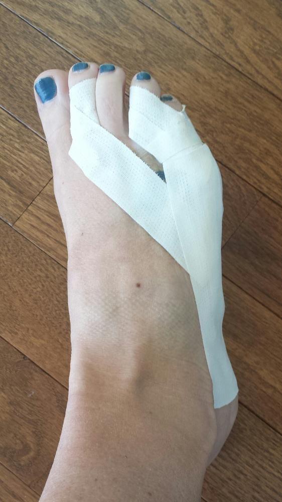 Broken Toe Cvs Splint