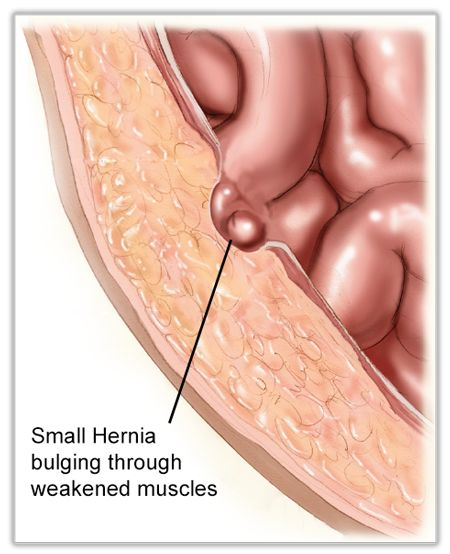 Belly Button Hernia Truss
