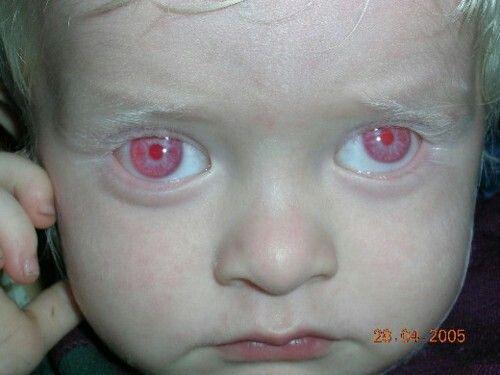 Black People Red Eyes