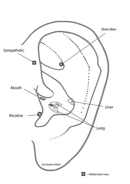 Hunger Point Acupuncture Ear