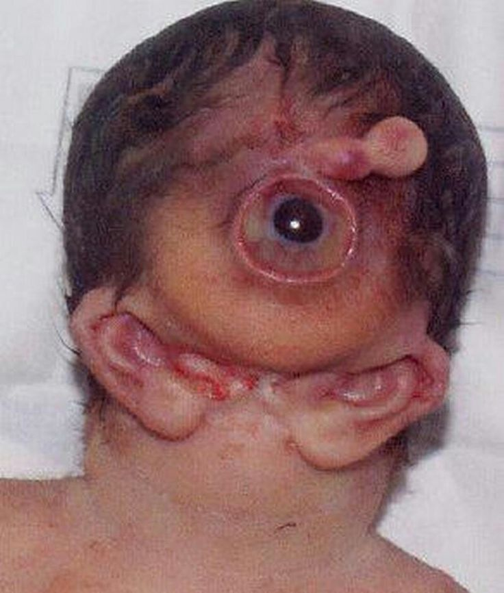 Human Inbreeding Birth Defects