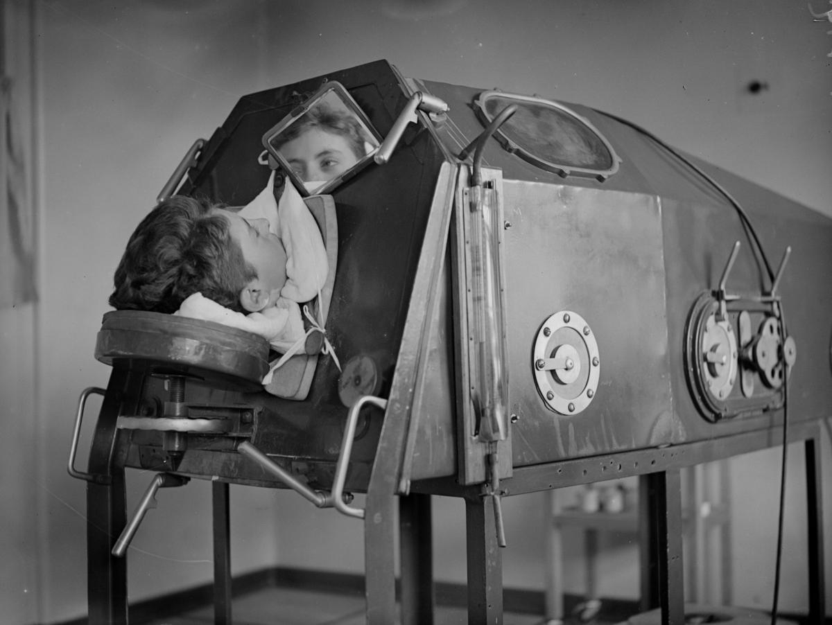 What Is An Iron Lung Some Polio Survivors Still Use Now