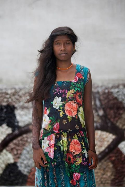 This Photo Shoot Featuring Acid Attack Survivors Will