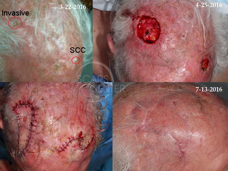 Adnexal Carcinoma Skin