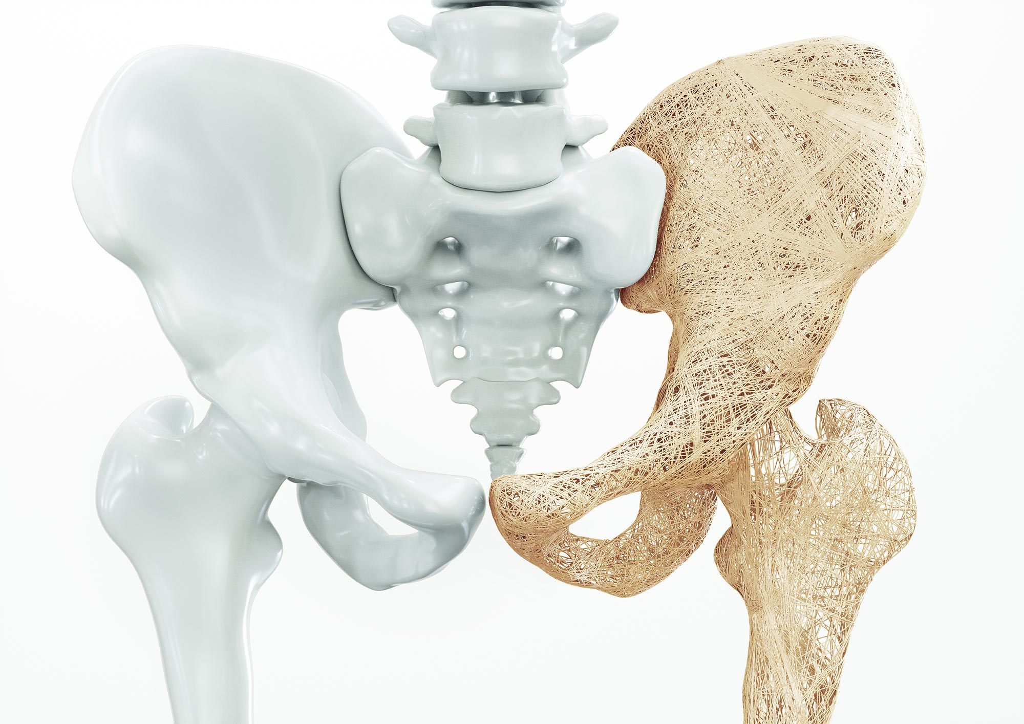 Statins Could Increase Or Decrease Osteoporosis Risk