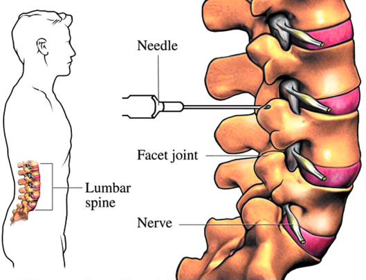 Facet Joint Injections Are Painful