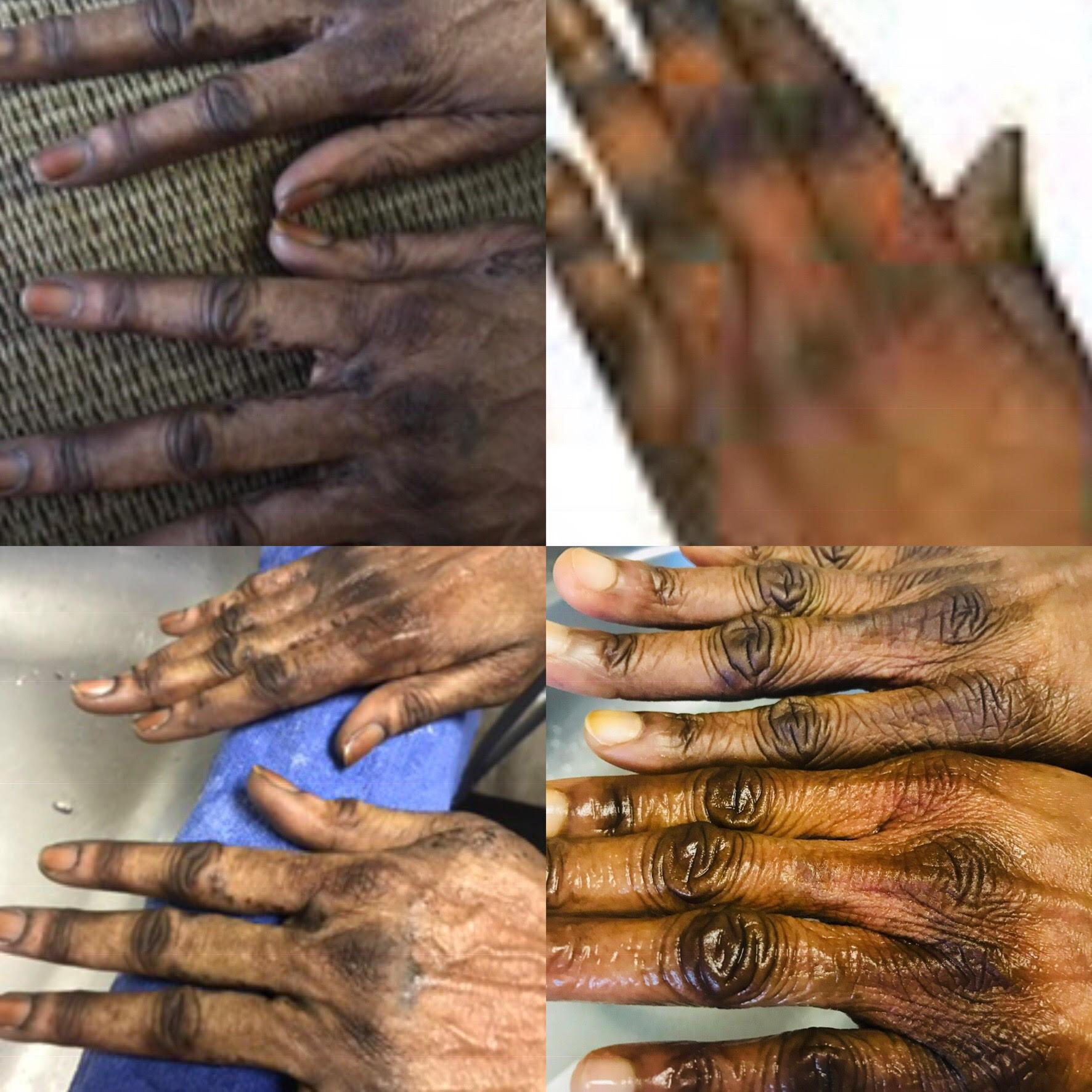 Black Skin Skin Best Lightening Cream