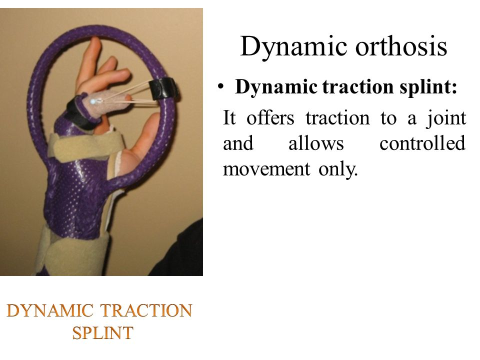 Splint Elbow Extension