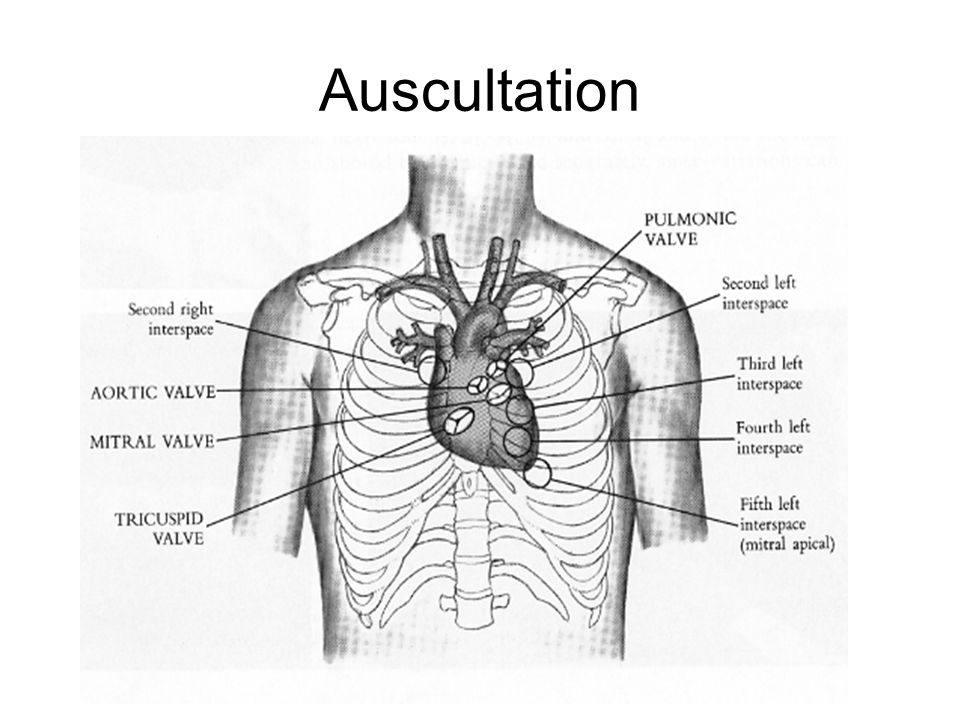 Diagram Heart Auscultation