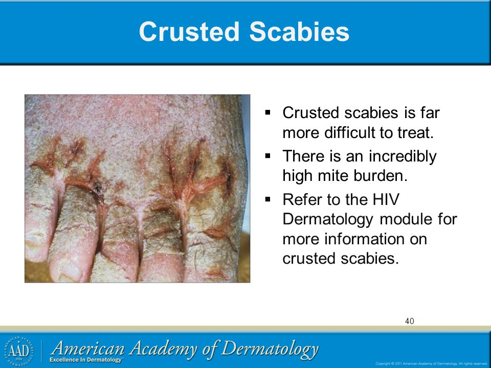 Do Where Come Scabies
