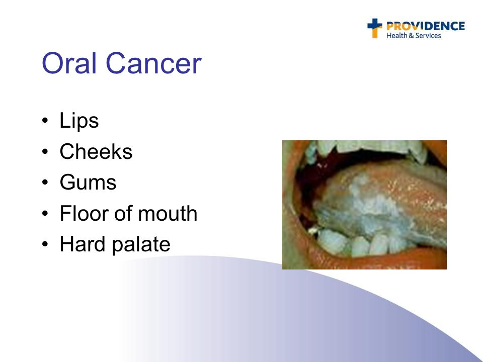 Stage Early Cell Squamous Carcinoma Nose