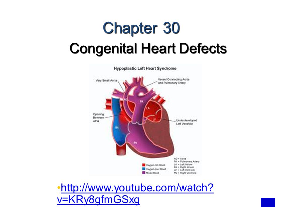 Congenital Heart Defects - ppt video online download
