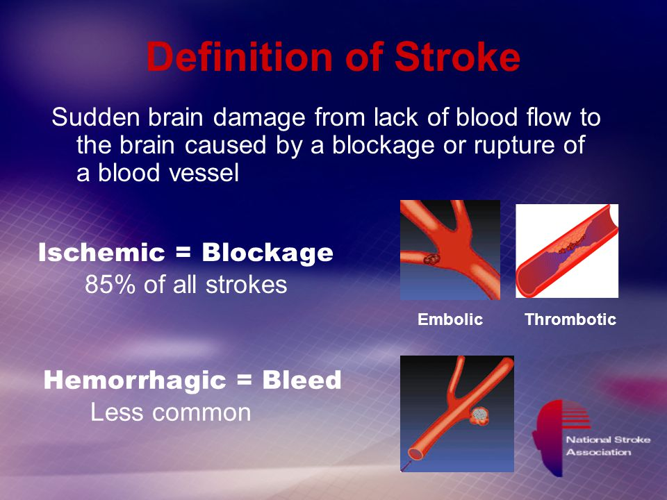 Stroke Recognition and Prevention - ppt video online download