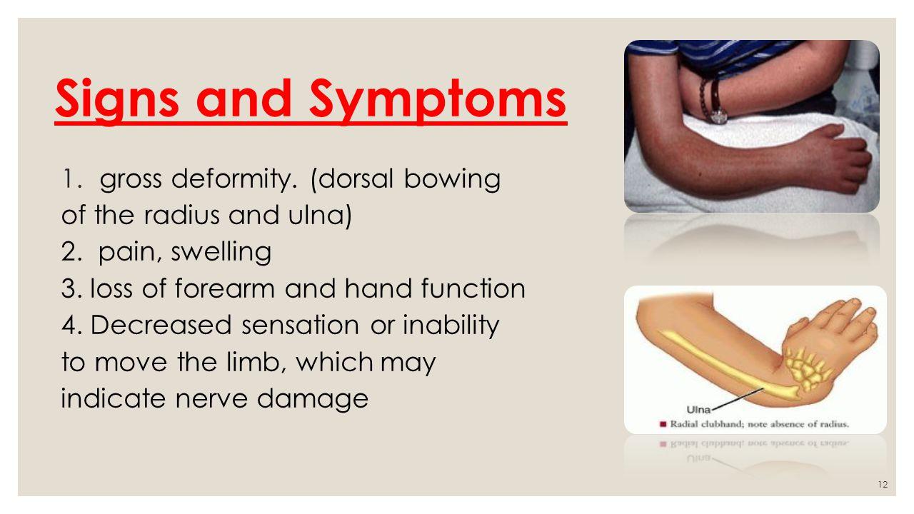 Broken Radial Bone Signs