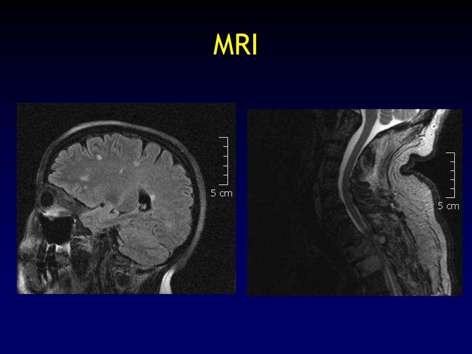 Grey Matter Brain Anatomy Axial Mri