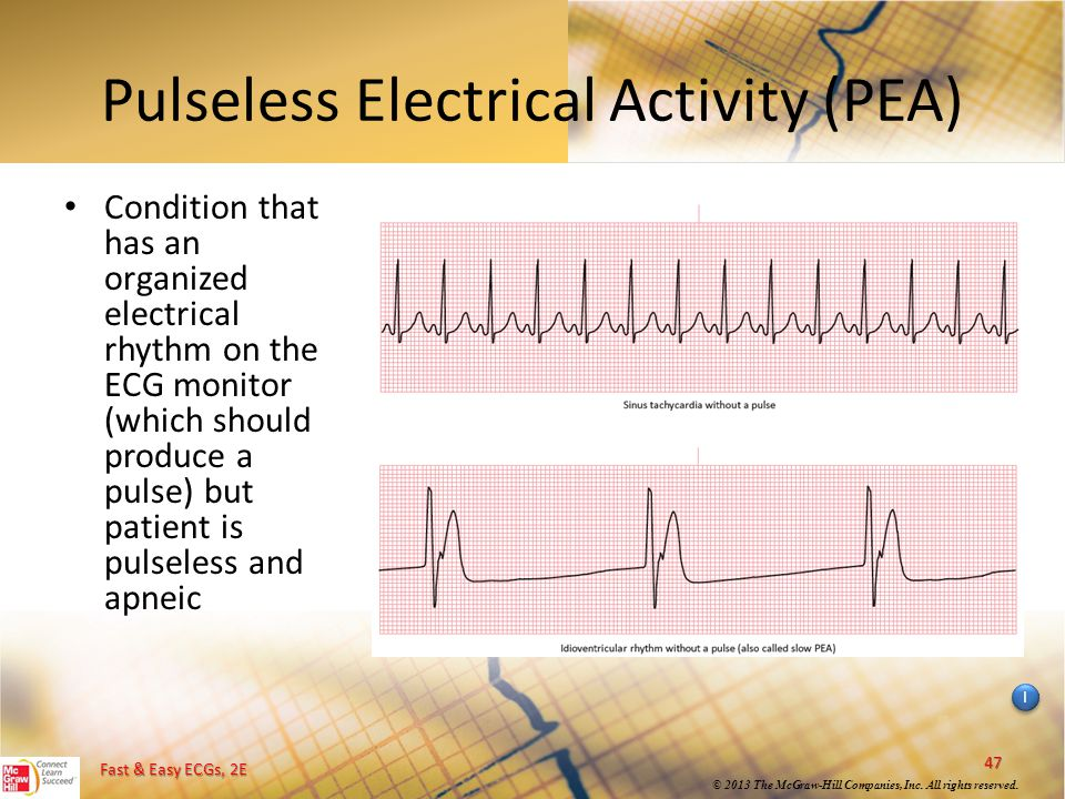 Asystole Between Pea Difference And