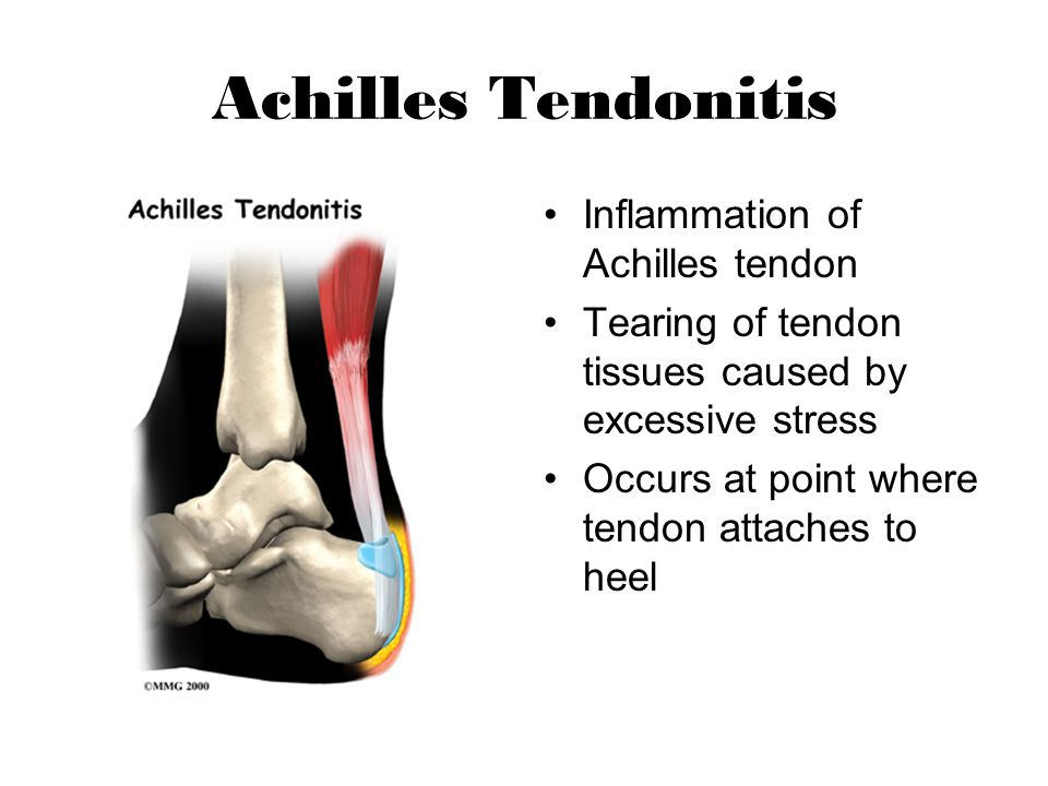 Anterior Tibial Tendon Rupture Treatment