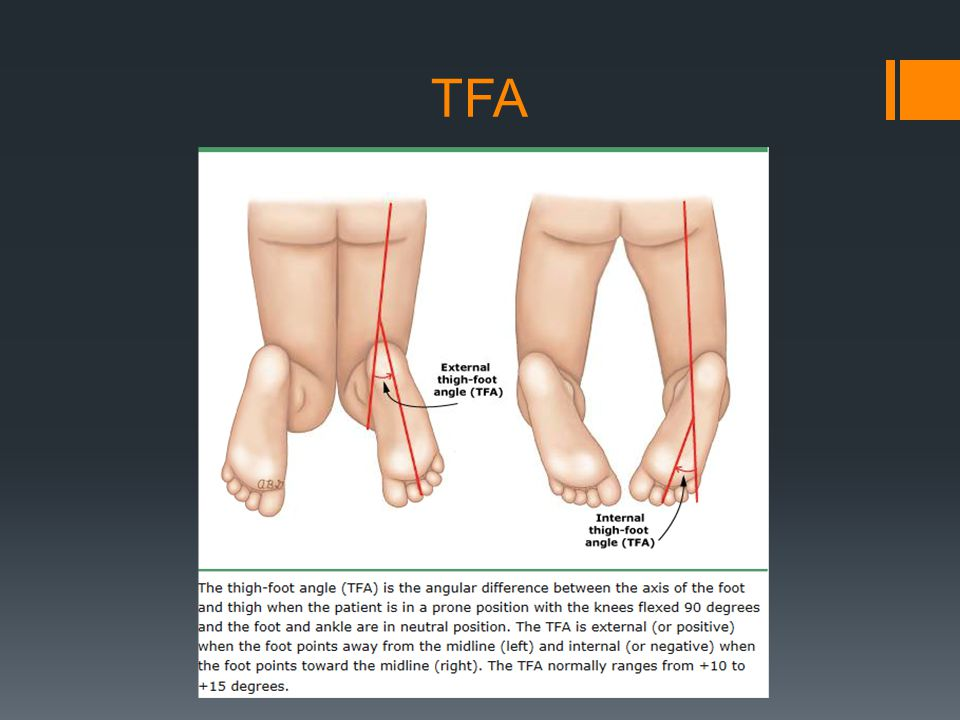 Thigh Foot Normal Angle