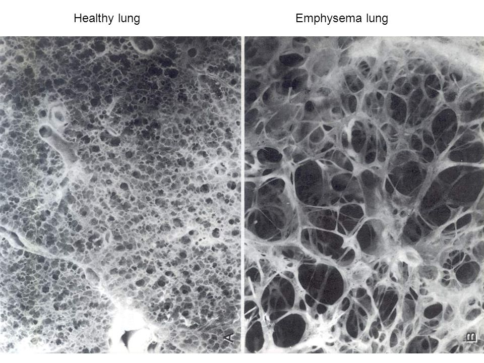 Healthy Lungs And Smokers
