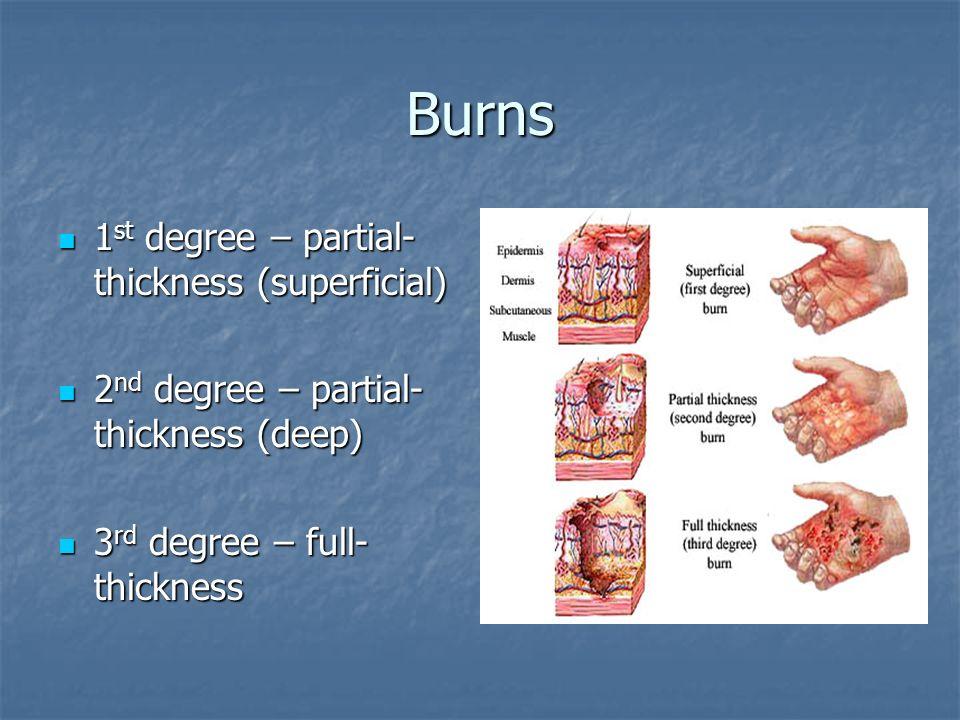 Wound Burn Care
