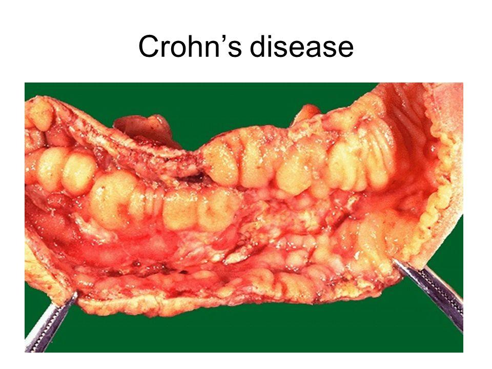 Villi In Small Intestine In Celiac Disease