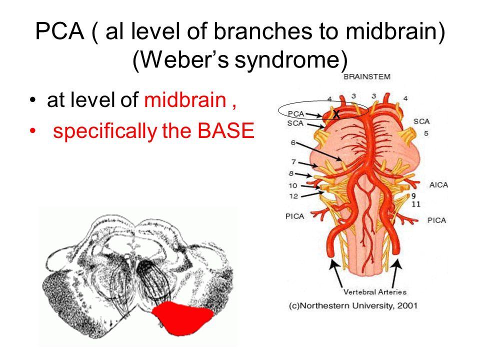 Left Cerebral Peduncle Stroke