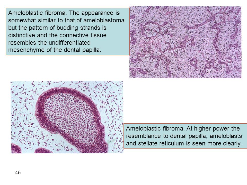 ameloblastic fibroma differential - 960×720