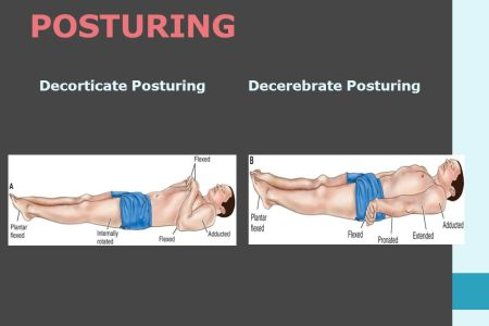 Decorticate And Decerebrate Posturing Which Is Worse     Oh Decor Curtain Decorticate Mnemonic And Review Decerebrate Posturing Nursing Nclex  Graduation On Twitter Med The Differences Between
