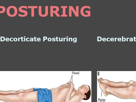 HD Decor Images » Decorticate And Decerebrate Posturing Which Is Worse     Oh Decor Curtain Decorticate Mnemonic And Review Decerebrate Posturing Nursing Nclex  Graduation On Twitter Med The Differences Between