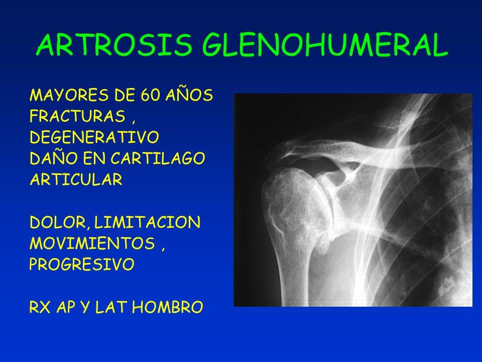 Rehabilitacion De Hombro