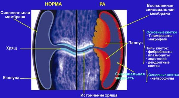 Воспалительные процессы в позвоночнике имеют резкий и интенсивный характер боли