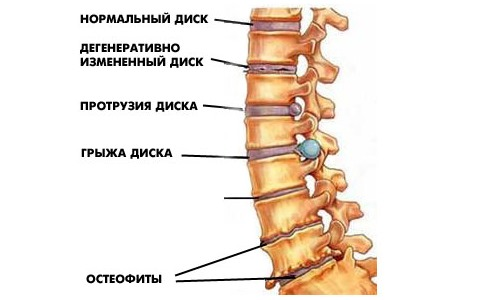 Muscles of the lower back can be divided into motor and stabilizing