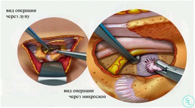 este posibil să se vindece stadiul inițial al varicozei