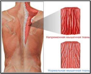 Οι προθερμανόμενοι μύες υπό την επίδραση των σχεδίων στενεύουν έντονα, προκαλώντας έτσι σπασμό.