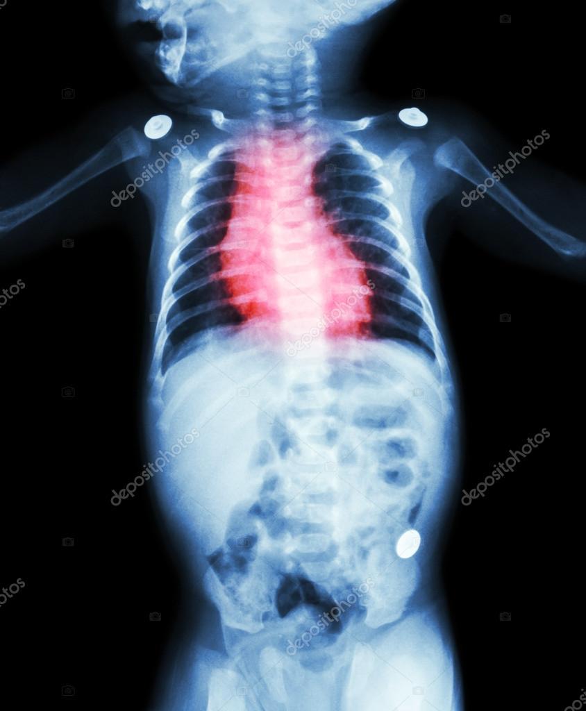 congenital heart disease in children - HD844×1024