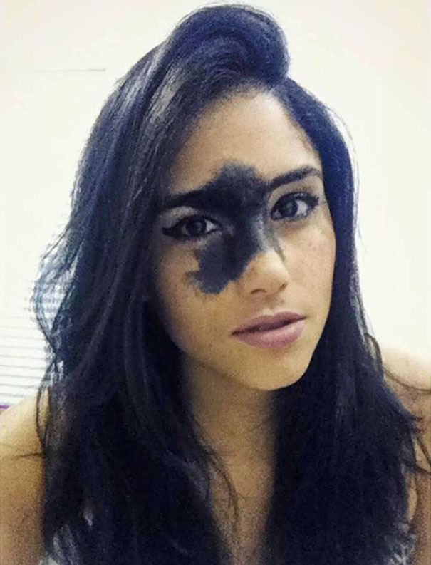 Girl Who Was Told That Her Rare Birthmark Looks Ugly Chose ...