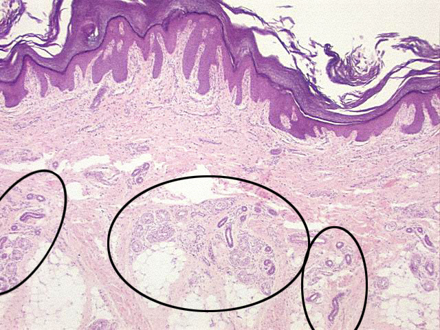 Of An Eccrine Sweat Gland Duct