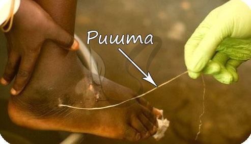 Vierme de Guineea