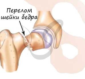 Pierderea în greutate doare articulațiile, Pierderea în greutate a articulațiilor rănite