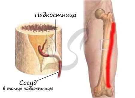 Osteoporoza, boala oaselor fragile - Pierde în greutate structura osoasă