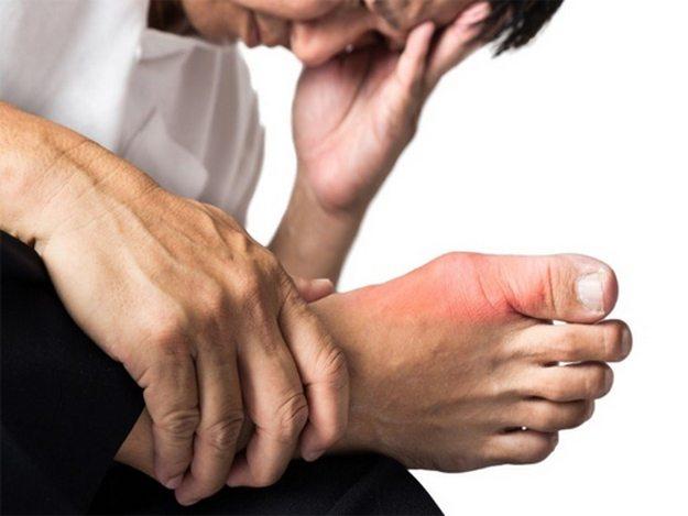 خوشه اسید اوریک در انگشتان پا