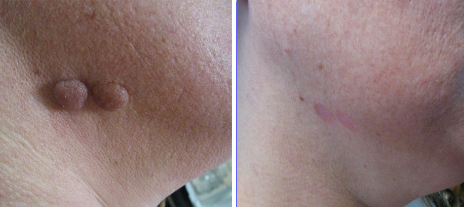 Mole And Skin Tag Removal Affordable Non Surgical Ideas And Designs