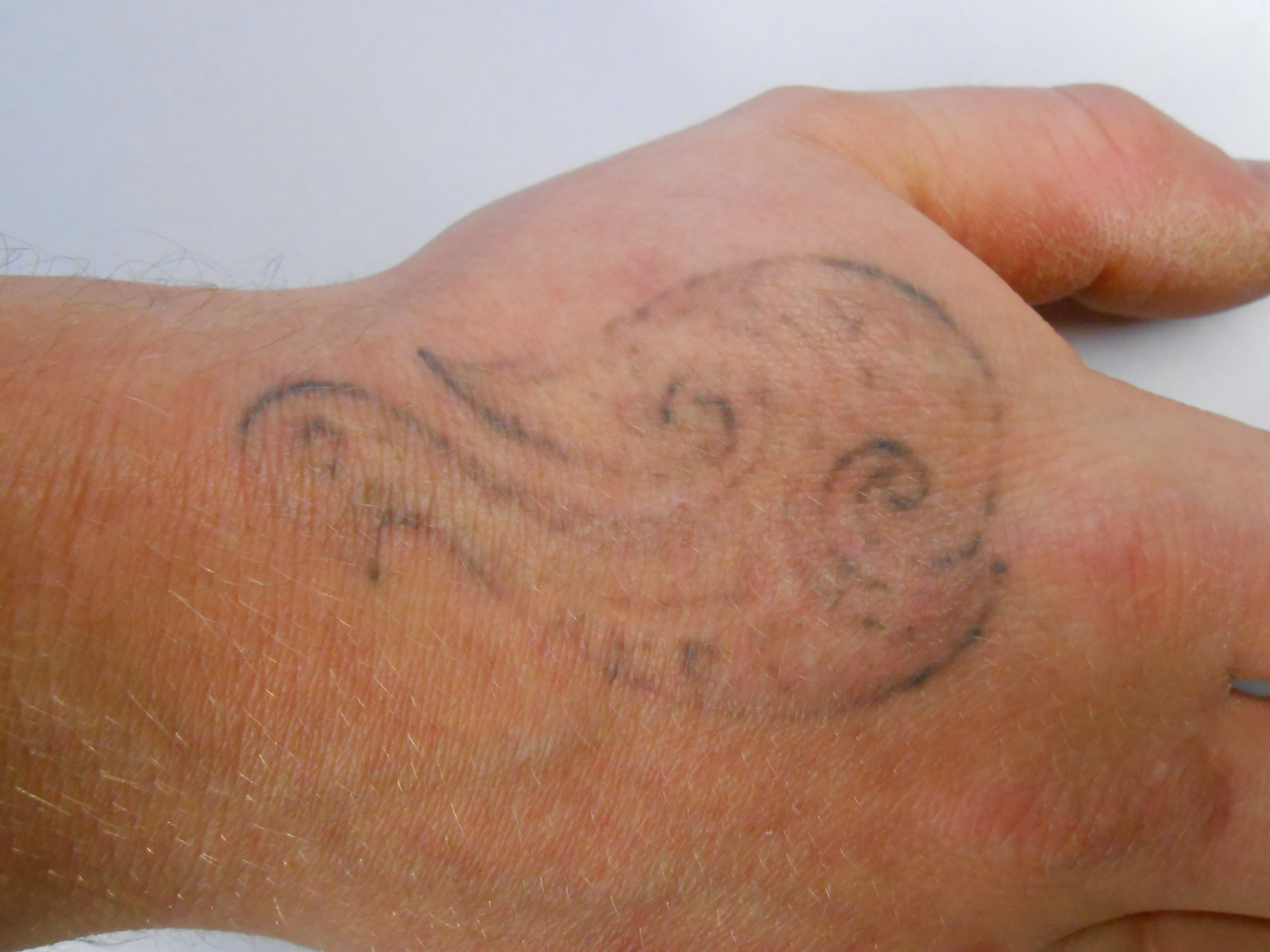 R20 Tattoo Removal Method Is It For You Ideas And Designs