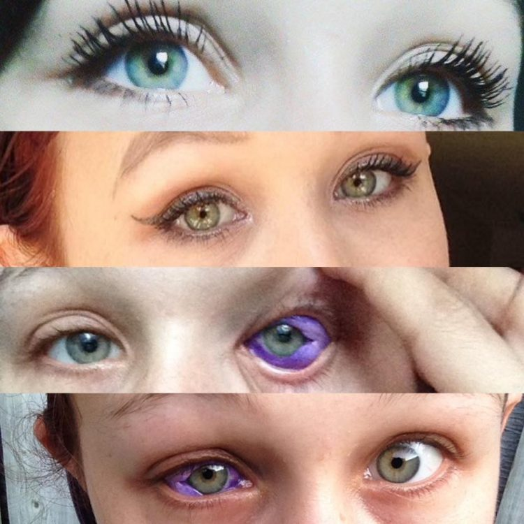 Botched Eyeball Tattoo Leaves Woman Crying Blue Tears Ideas And Designs