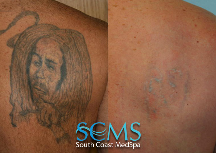 Laser Tattoo Removal Gallery Before And After Laser Ideas And Designs