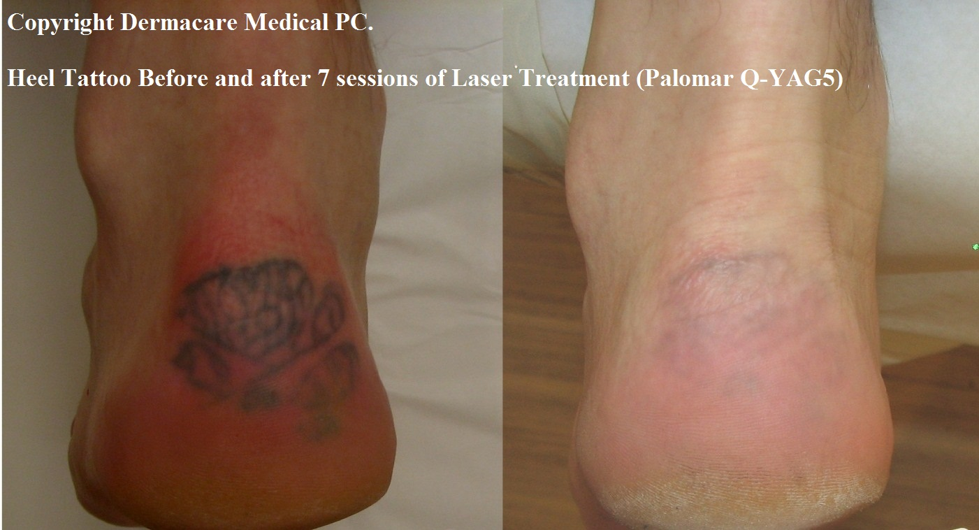 1000 Images About Tattoo Removal Prices On Pinterest Ideas And Designs