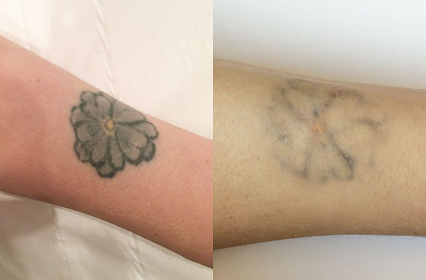 Laser Tattoo Removal What It S Really Like To Have A Ideas And Designs