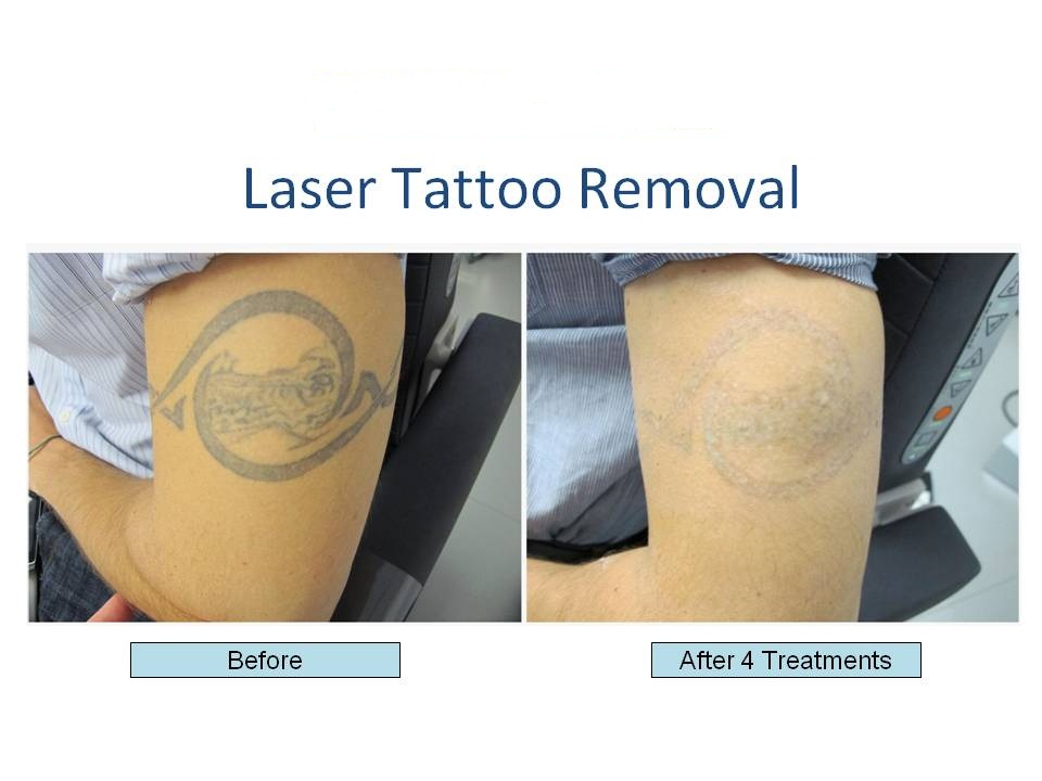 How To Eliminate Tattoo With Effective Laser Treatment Ideas And Designs